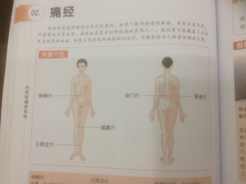 中国医学 生理痛の吸い玉治療