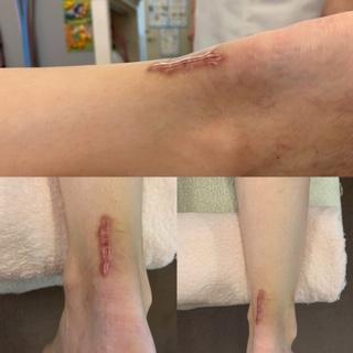 アキレス腱断裂、術後の施術